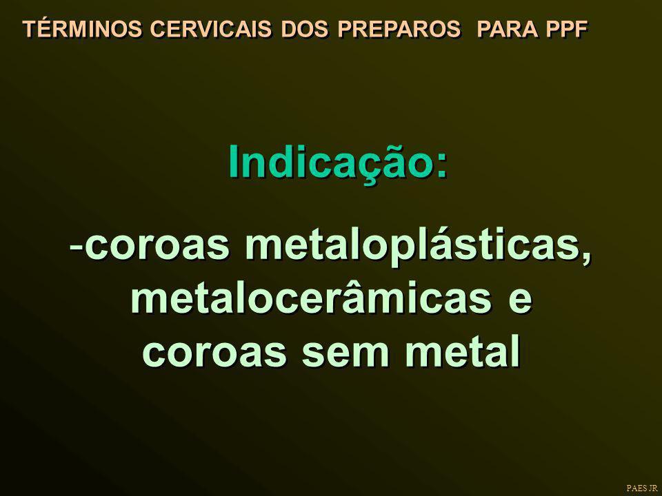 PAES JR TÉRMINOS CERVICAIS DOS PREPAROS PARA PPF Indicação: -coroas metaloplásticas, metalocerâmicas e coroas sem metal Indicação: -coroas metaloplást