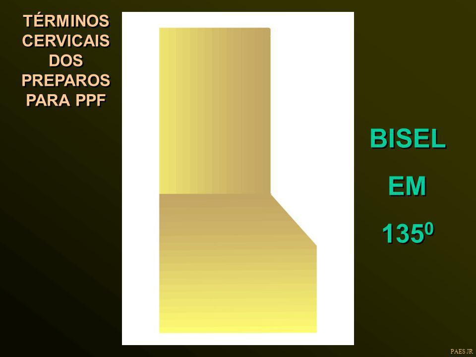 PAES JR TÉRMINOS CERVICAIS DOS PREPAROS PARA PPF BISEL EM 135 0 BISEL EM 135 0