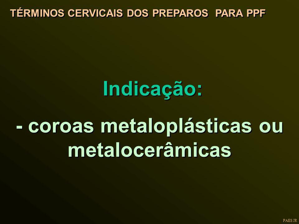 PAES JR TÉRMINOS CERVICAIS DOS PREPAROS PARA PPF Indicação: - coroas metaloplásticas ou metalocerâmicas Indicação: - coroas metaloplásticas ou metaloc