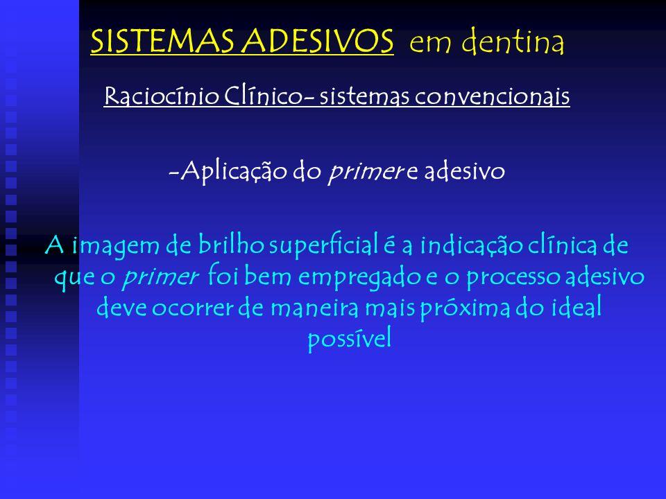 Raciocínio Clínico- sistemas convencionais -Aplicação do primer e adesivo A imagem de brilho superficial é a indicação clínica de que o primer foi bem