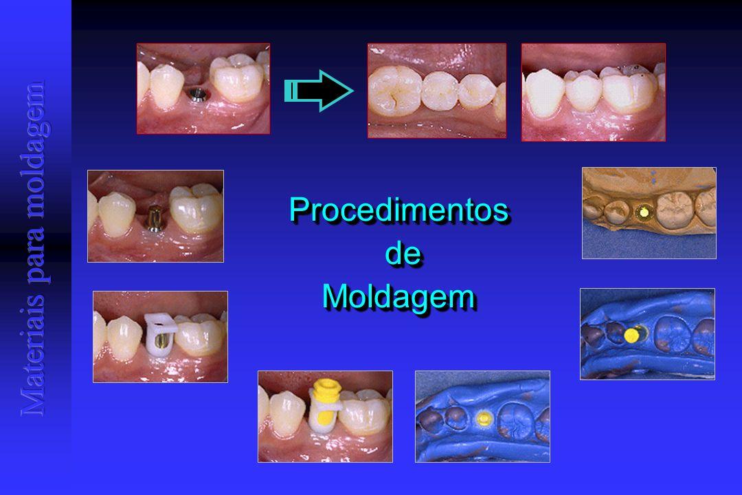 Procedimentos de Moldagem