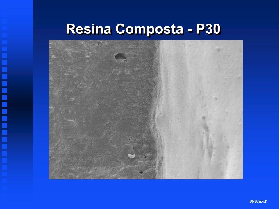 UNICAMP Resina Composta - P30