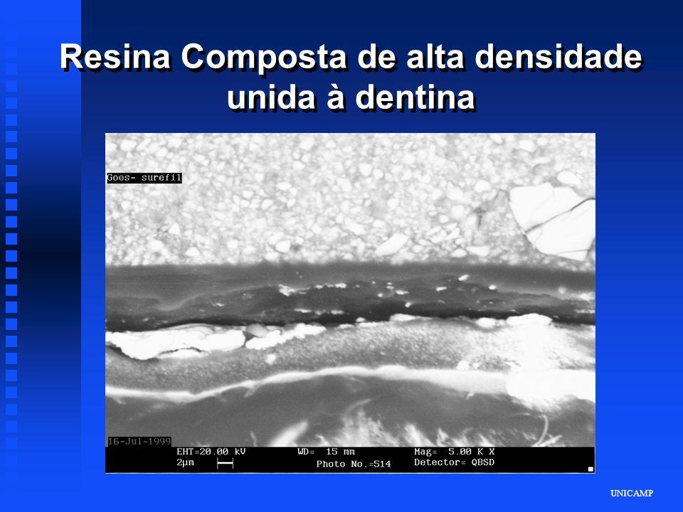 UNICAMP Resina Composta de alta densidade unida à dentina