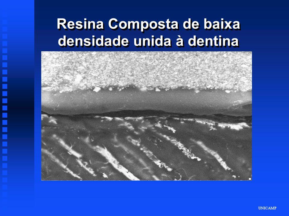 UNICAMP Resina Composta de baixa densidade unida à dentina