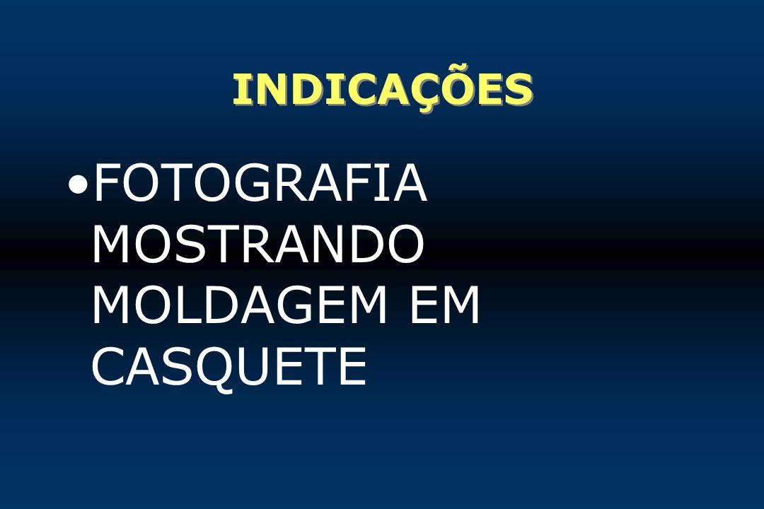 INDICAÇÕES FOTOGRAFIA MOSTRANDO MOLDAGEM EM CASQUETE
