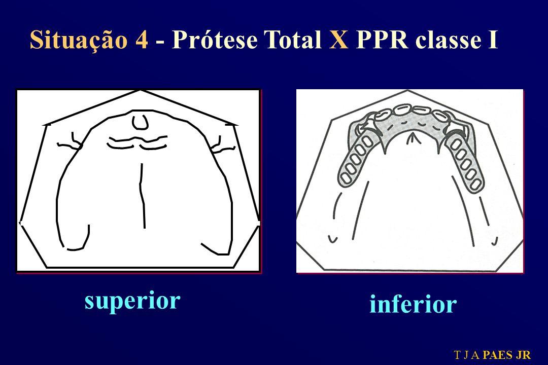 T J A PAES JR Situação 4 - Prótese Total X PPR classe I superior inferior