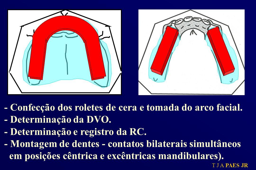 T J A PAES JR - Confecção dos roletes de cera e tomada do arco facial. - Determinação da DVO. - Determinação e registro da RC. - Montagem de dentes -