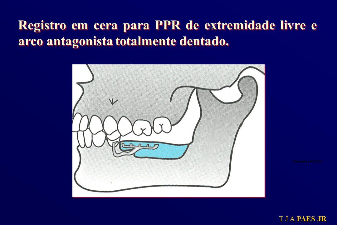 T J A PAES JR Registro em cera para PPR de extremidade livre e arco antagonista totalmente dentado. Kliemann e Oliveira