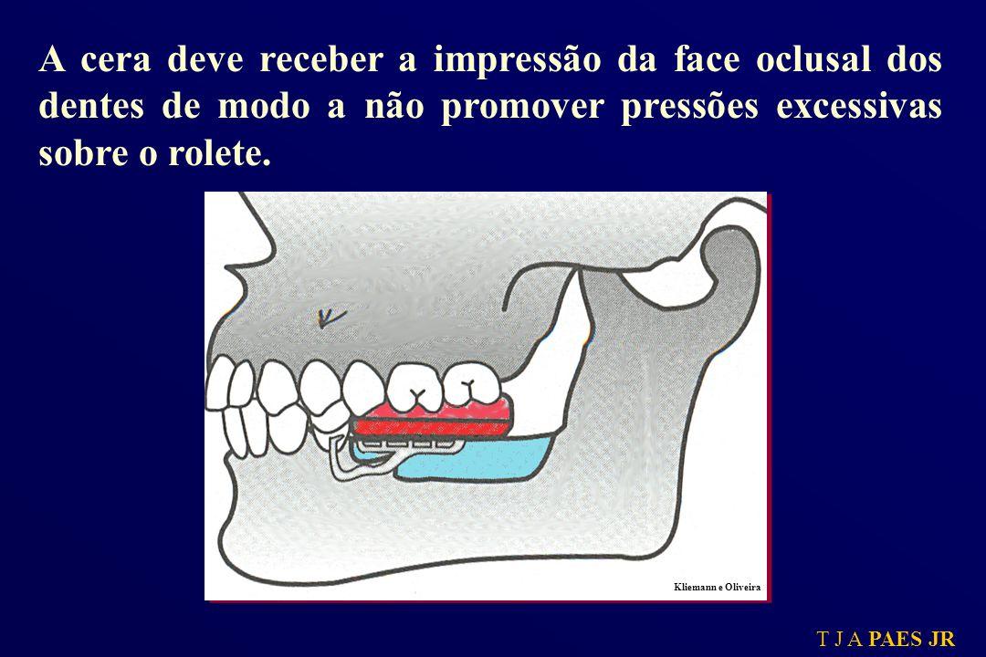 T J A PAES JR A cera deve receber a impressão da face oclusal dos dentes de modo a não promover pressões excessivas sobre o rolete. Kliemann e Oliveir