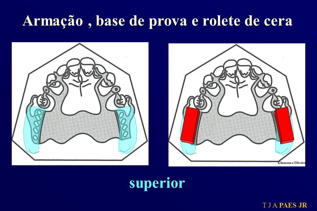 T J A PAES JR A cera deve receber a impressão da face oclusal dos dentes de modo a não promover pressões excessivas sobre o rolete.