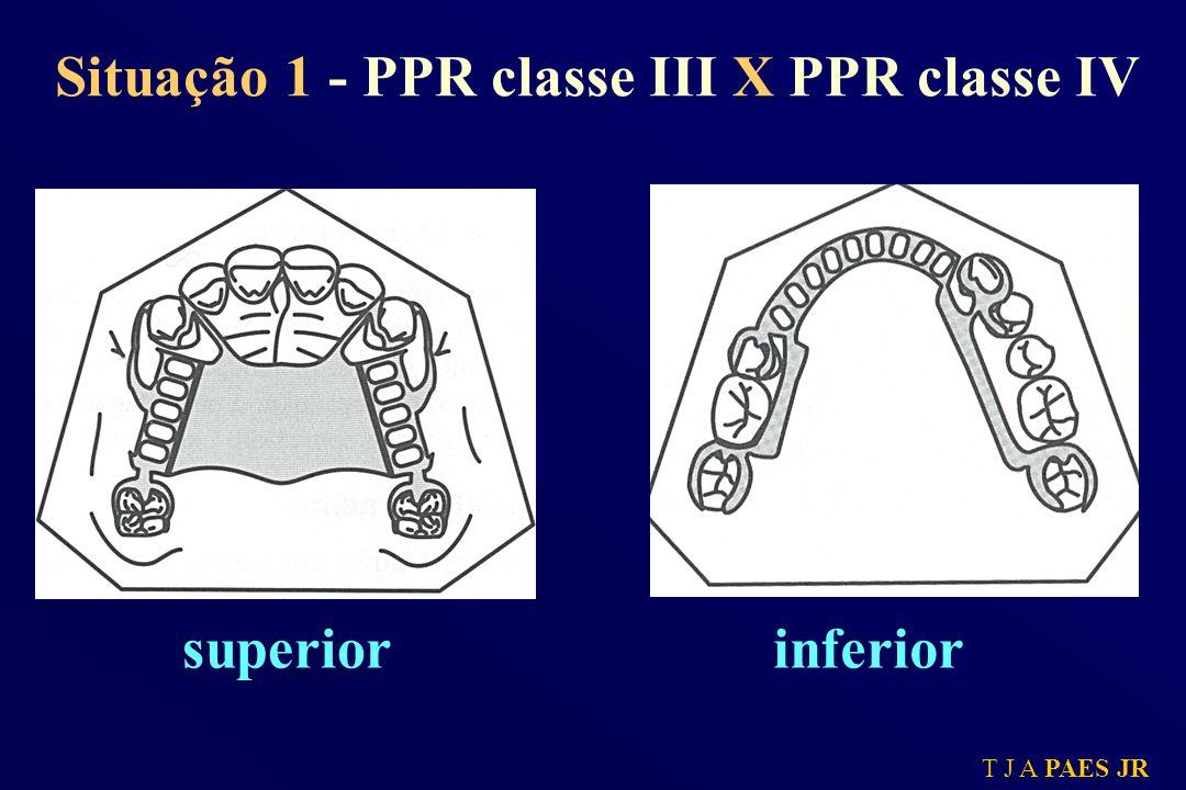 T J A PAES JR superiorinferior Situação 1 - PPR classe III X PPR classe IV