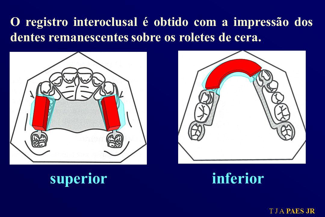 T J A PAES JR superiorinferior O registro interoclusal é obtido com a impressão dos dentes remanescentes sobre os roletes de cera.