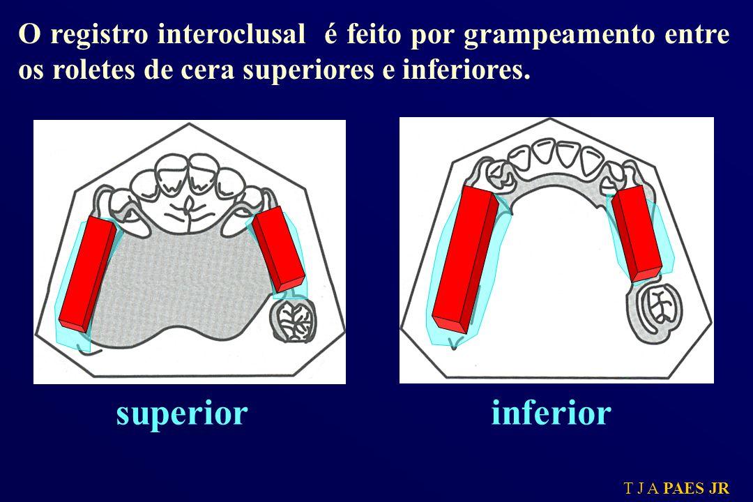 T J A PAES JR superiorinferior O registro interoclusal é feito por grampeamento entre os roletes de cera superiores e inferiores.