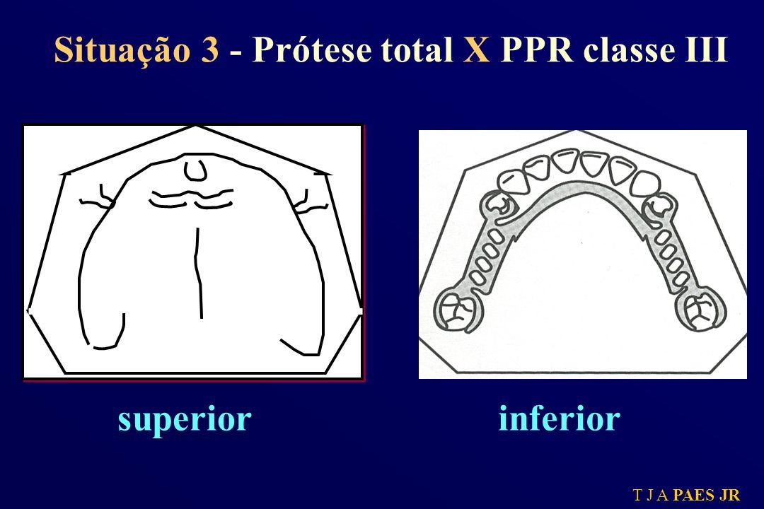 T J A PAES JR Situação 3 - Prótese total X PPR classe III superiorinferior
