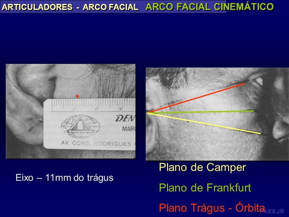 PAES JR ARTICULADORES - ARCO FACIAL ARCO FACIAL CINEMÁTICO Plano de Camper Plano de Frankfurt Plano Trágus - Órbita Eixo – 11mm do trágus
