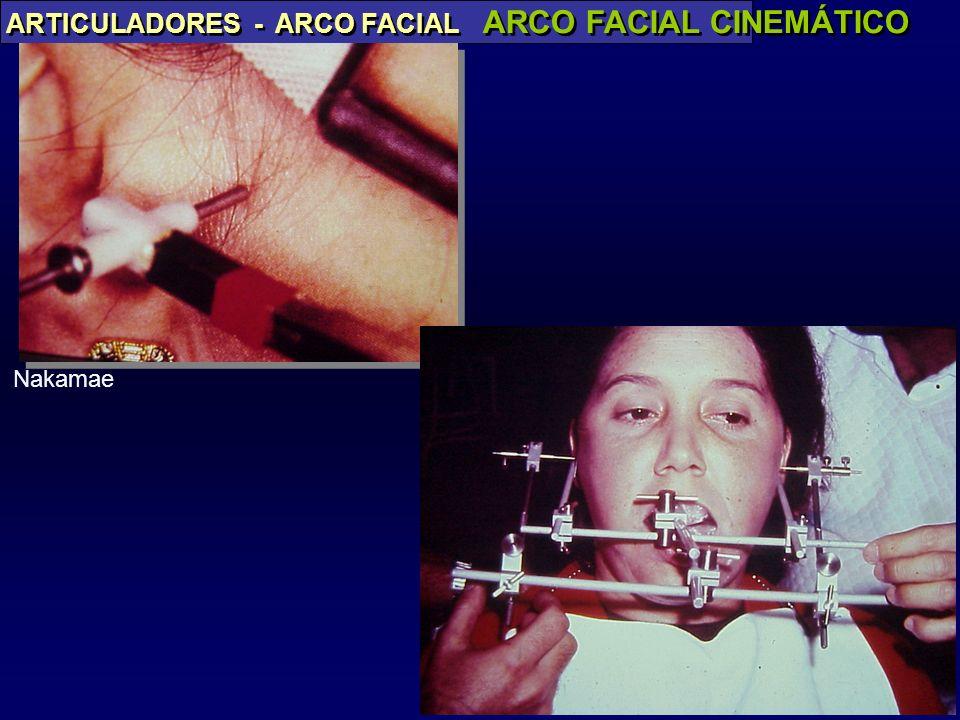 PAES JR ARTICULADORES - ARCO FACIAL ARCO FACIAL CINEMÁTICO Nakamae