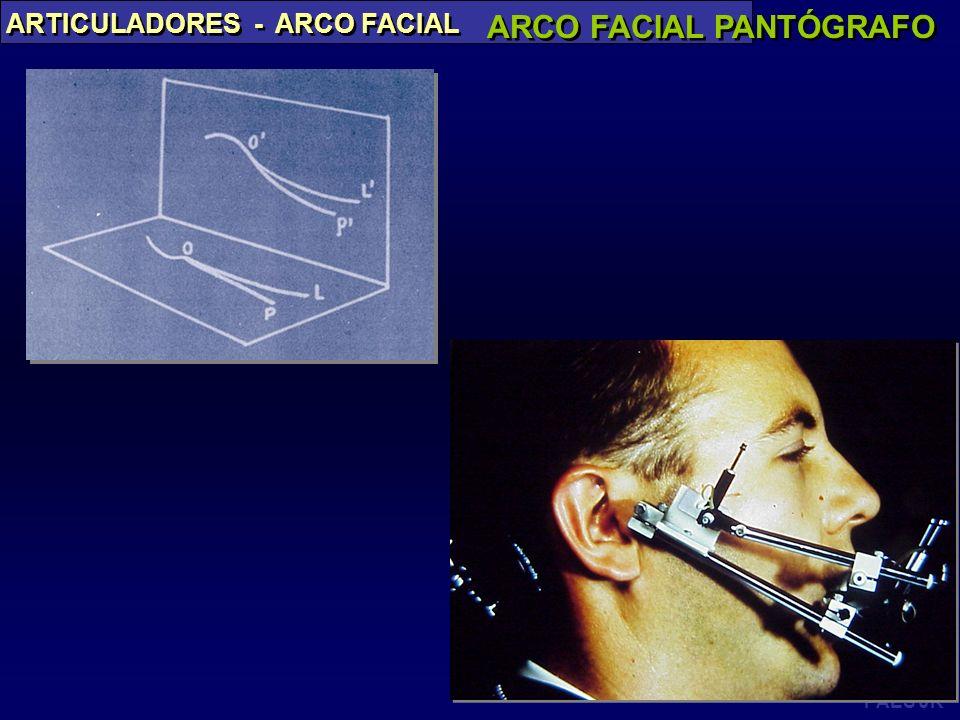 PAES JR ARTICULADORES - ARCO FACIAL ARCO FACIAL PANTÓGRAFO