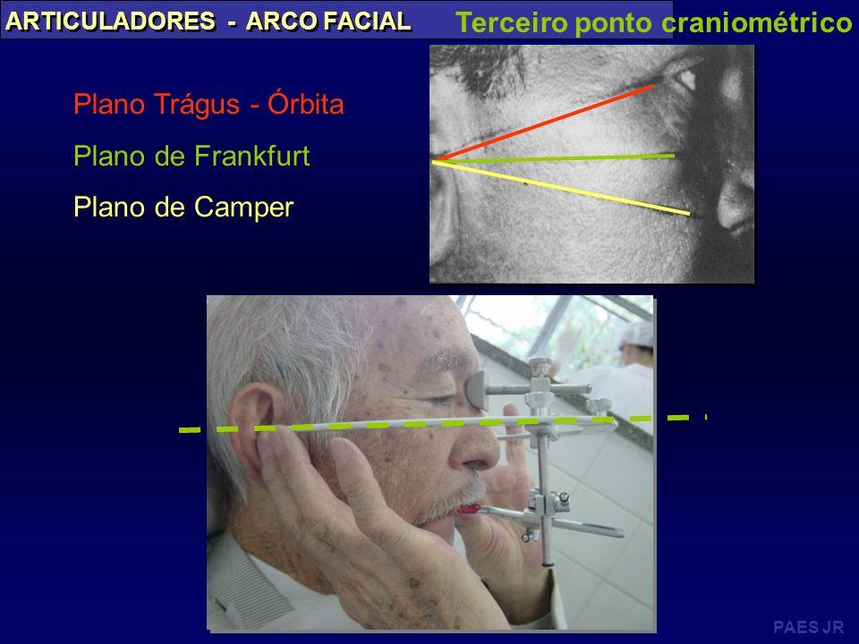 PAES JR ARTICULADORES - ARCO FACIAL Terceiro ponto craniométrico Plano Trágus - Órbita Plano de Frankfurt Plano de Camper