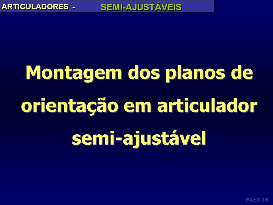 PAES JR ARTICULADORES - SEMI-AJUSTÁVEIS Montagem dos planos de orientação em articulador semi-ajustável