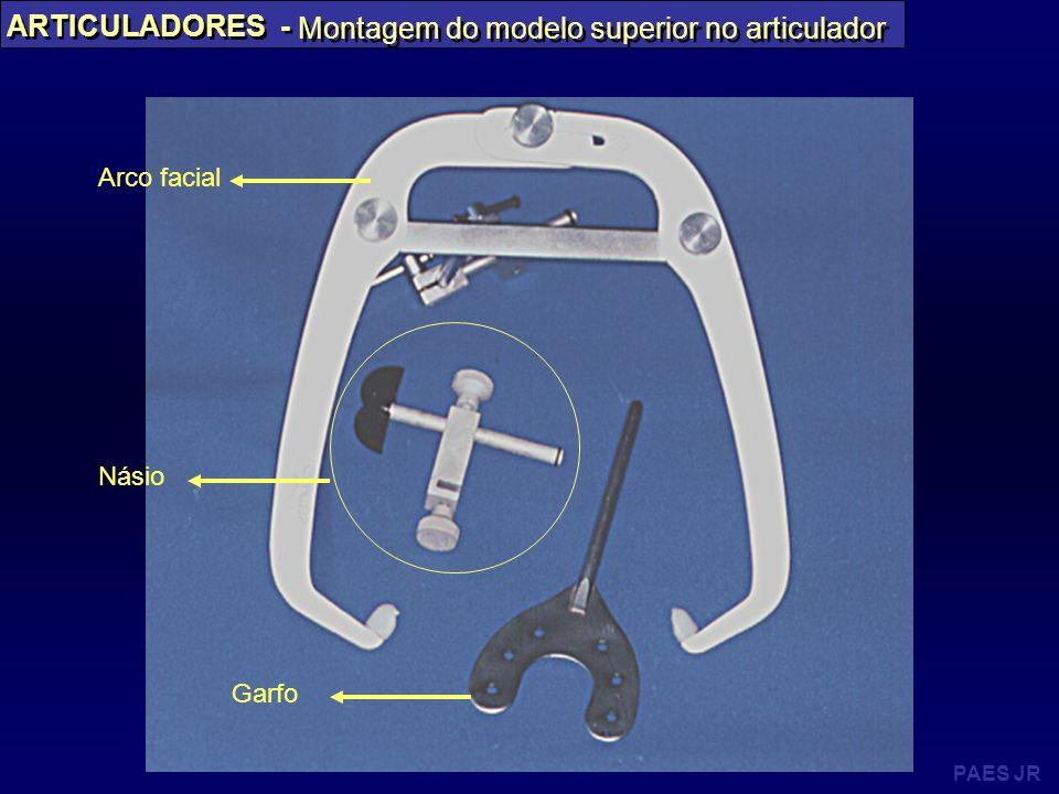 PAES JR ARTICULADORES - Montagem do modelo superior no articulador Násio Garfo Arco facial