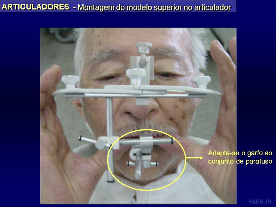 PAES JR ARTICULADORES - Montagem do modelo superior no articulador Adapta-se o garfo ao conjunto de parafuso