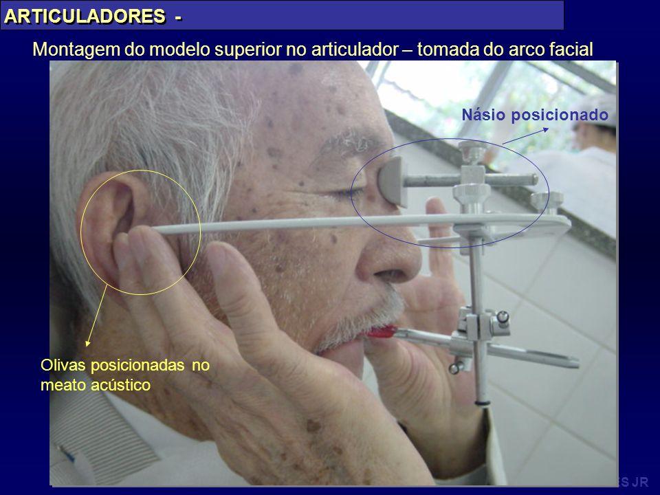 PAES JR Montagem do modelo superior no articulador – tomada do arco facial Násio posicionado Olivas posicionadas no meato acústico ARTICULADORES -