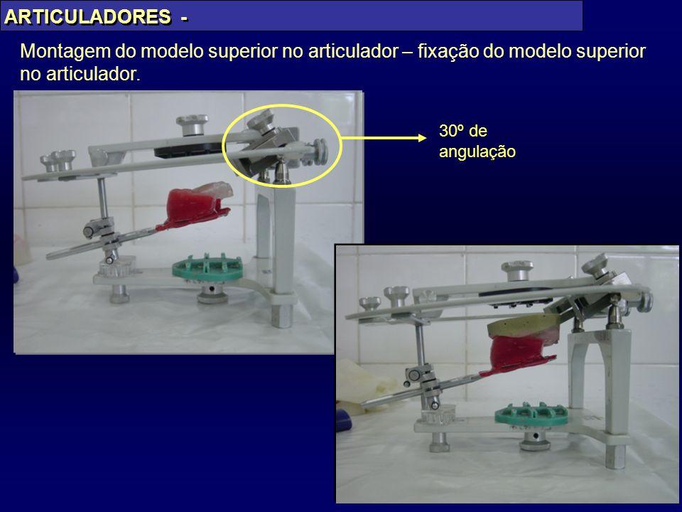 PAES JR Montagem do modelo superior no articulador – fixação do modelo superior no articulador. ARTICULADORES - 30º de angulação