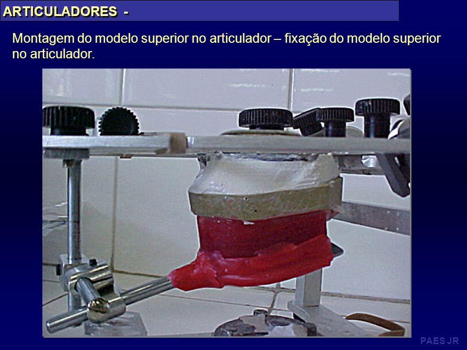 PAES JR Montagem do modelo superior no articulador – fixação do modelo superior no articulador. ARTICULADORES -