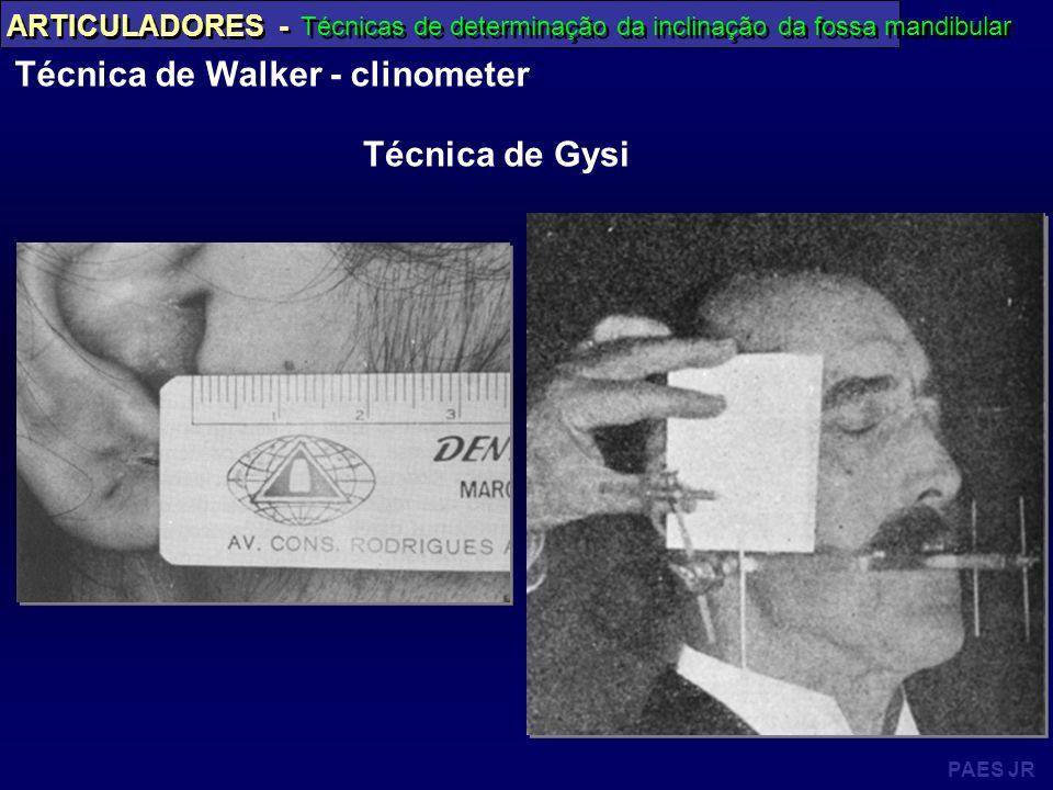 PAES JR ARTICULADORES - Técnicas de determinação da inclinação da fossa mandibular Técnica de Walker - clinometer Técnica de Gysi