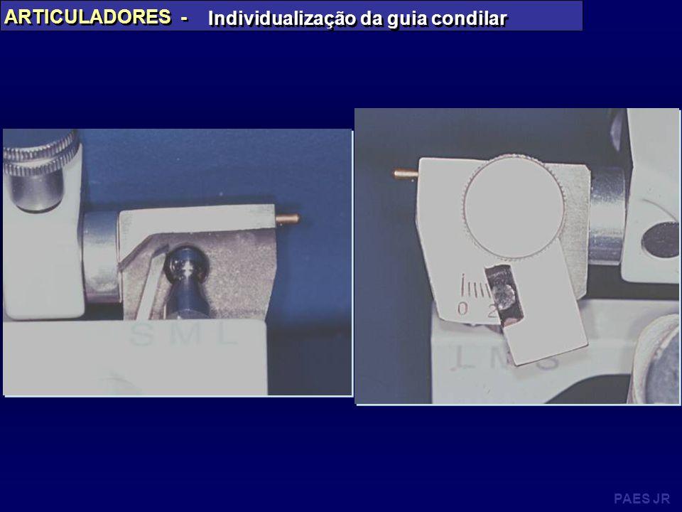 PAES JR ARTICULADORES - Individualização da guia condilar