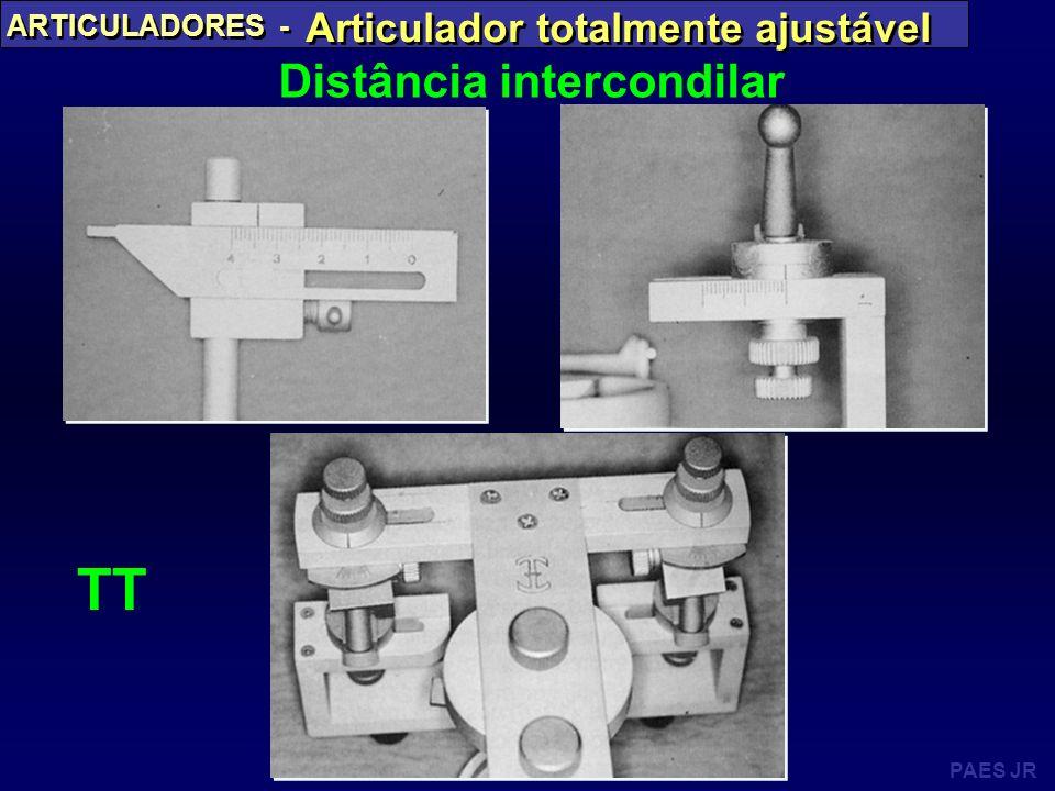 PAES JR ARTICULADORES - Articulador totalmente ajustável Distância intercondilar TT