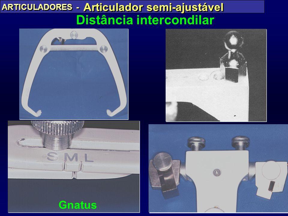 PAES JR ARTICULADORES - Articulador semi-ajustável Distância intercondilar Gnatus