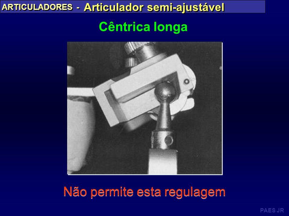 PAES JR ARTICULADORES - Articulador semi-ajustável Cêntrica longa Não permite esta regulagem