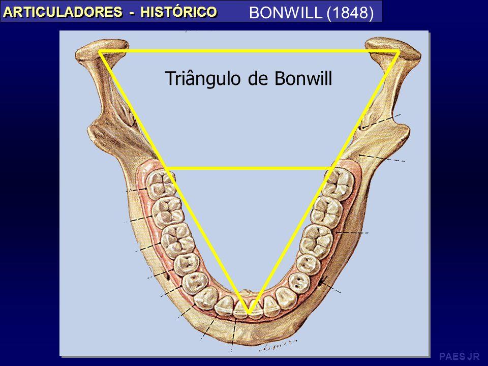 PAES JR ARTICULADORES - HISTÓRICO BONWILL (1848) Triângulo de Bonwill