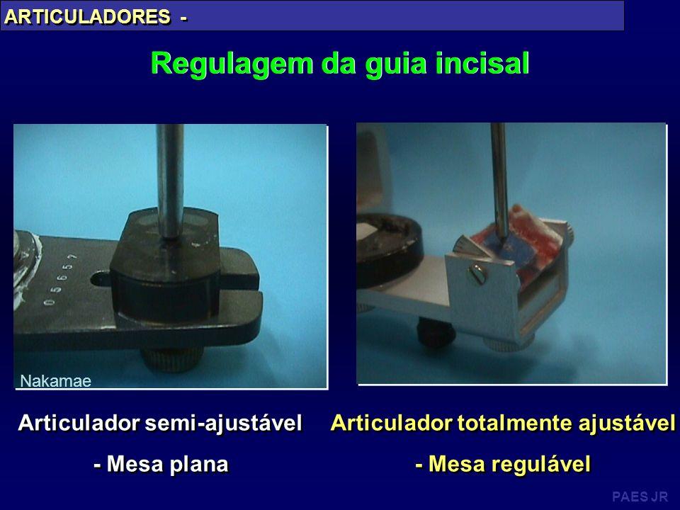 PAES JR ARTICULADORES - Regulagem da guia incisal Articulador totalmente ajustável - Mesa regulável Articulador totalmente ajustável - Mesa regulável