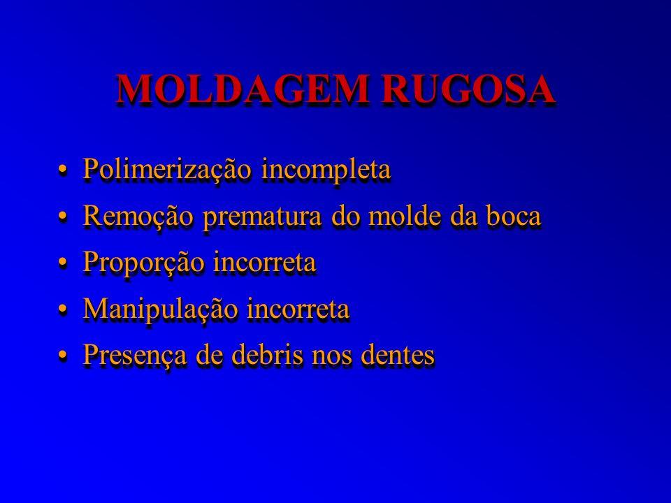 MOLDAGEM RUGOSA Polimerização incompletaPolimerização incompleta Remoção prematura do molde da bocaRemoção prematura do molde da boca Proporção incorr
