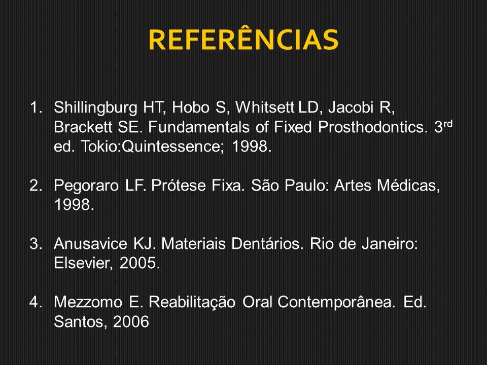 REFERÊNCIAS 1.Shillingburg HT, Hobo S, Whitsett LD, Jacobi R, Brackett SE. Fundamentals of Fixed Prosthodontics. 3 rd ed. Tokio:Quintessence; 1998. 2.