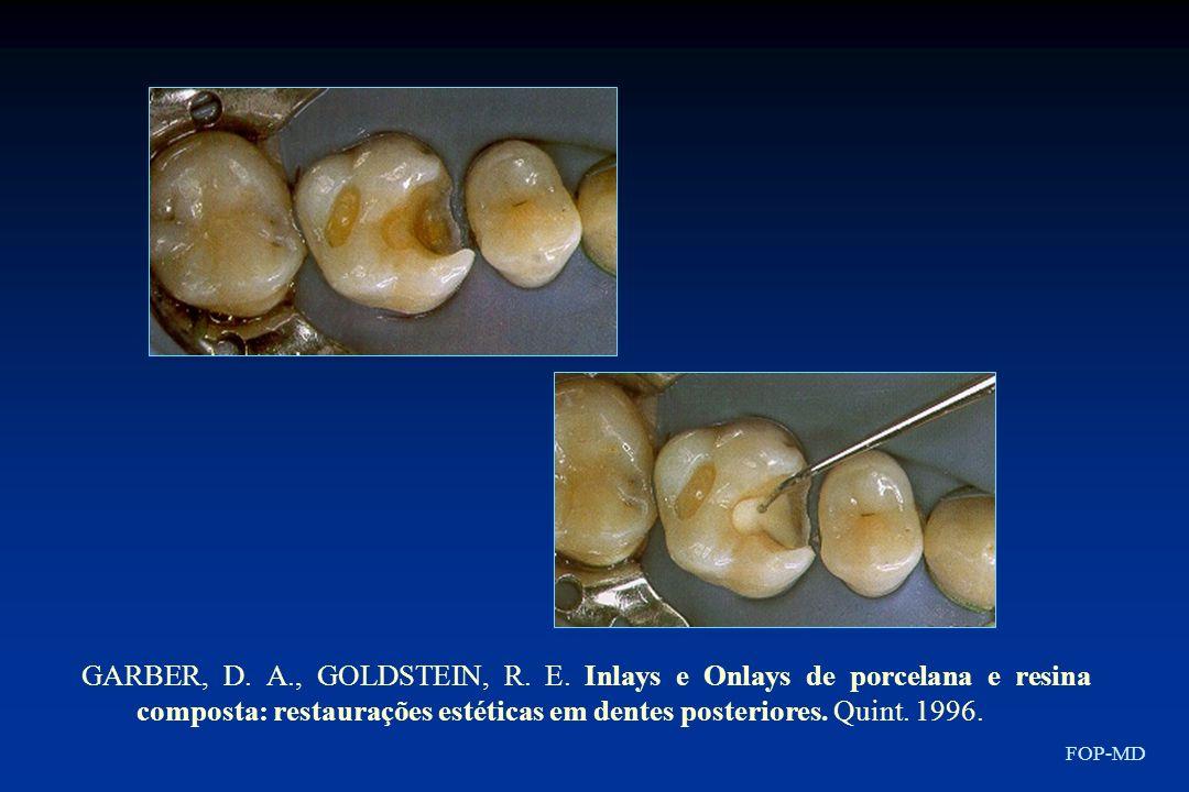 GARBER, D. A., GOLDSTEIN, R. E. Inlays e Onlays de porcelana e resina composta: restaurações estéticas em dentes posteriores. Quint. 1996. FOP-MD