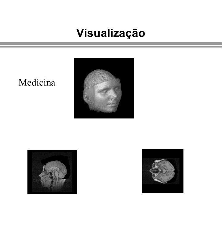 Visualização Medicina