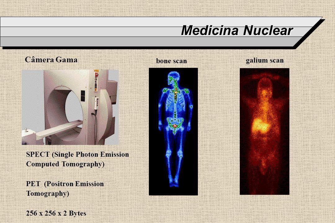 Medicina Nuclear SPECT (Single Photon Emission Computed Tomography) PET (Positron Emission Tomography) 256 x 256 x 2 Bytes Câmera Gama bone scan galiu