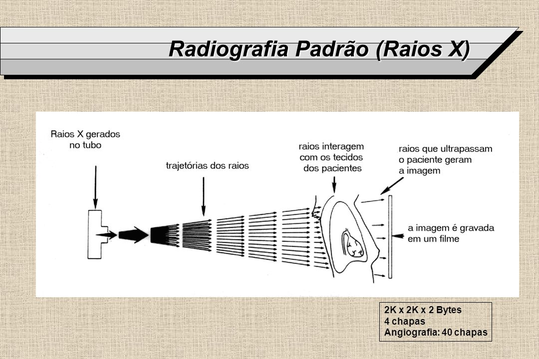 Radiografia Padrão (Raios X) 2K x 2K x 2 Bytes 4 chapas Angiografia: 40 chapas