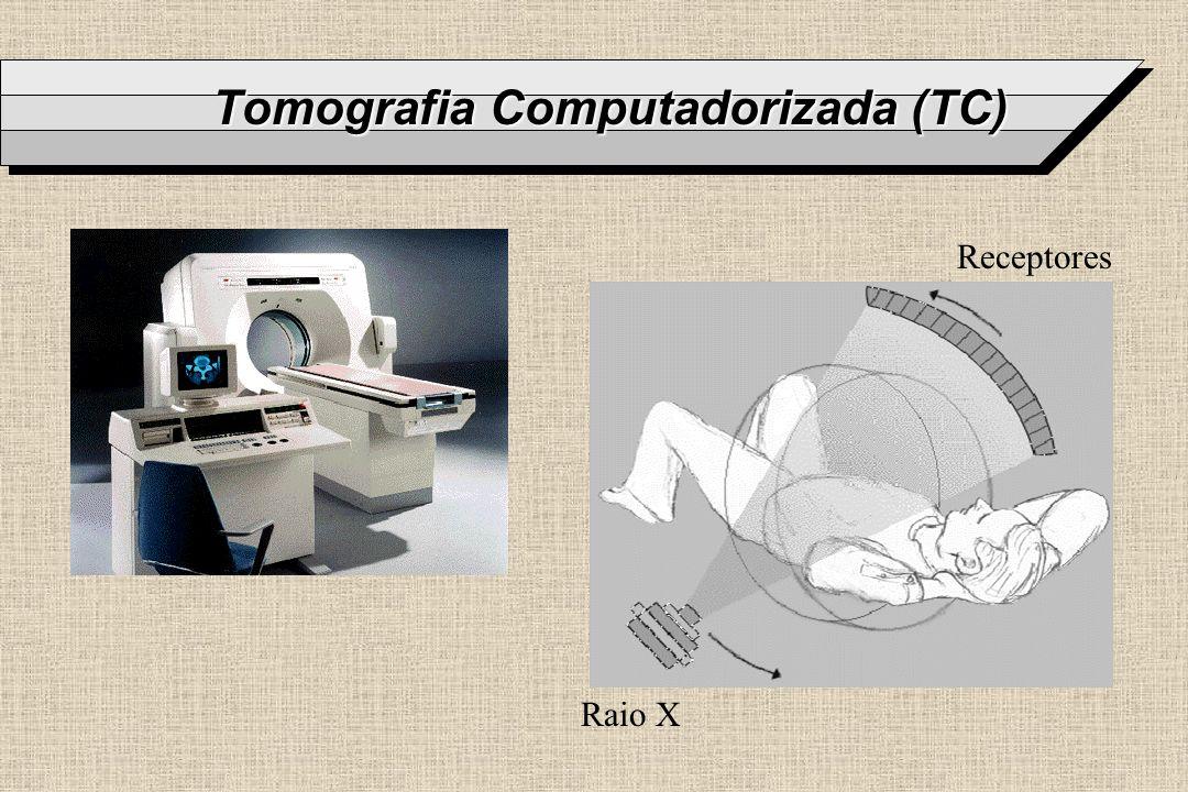 Exemplos de Imagens de TC Normalmente 512 x 512 de 1/2 a 2 mm Números em unidades de Hounsfield (HU) Exame de 5 a 30 min.