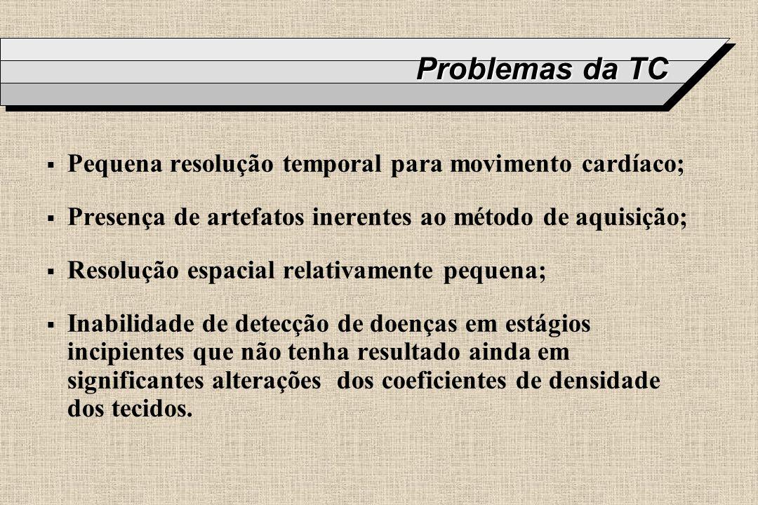 Problemas da TC Pequena resolução temporal para movimento cardíaco; Presença de artefatos inerentes ao método de aquisição; Resolução espacial relativ