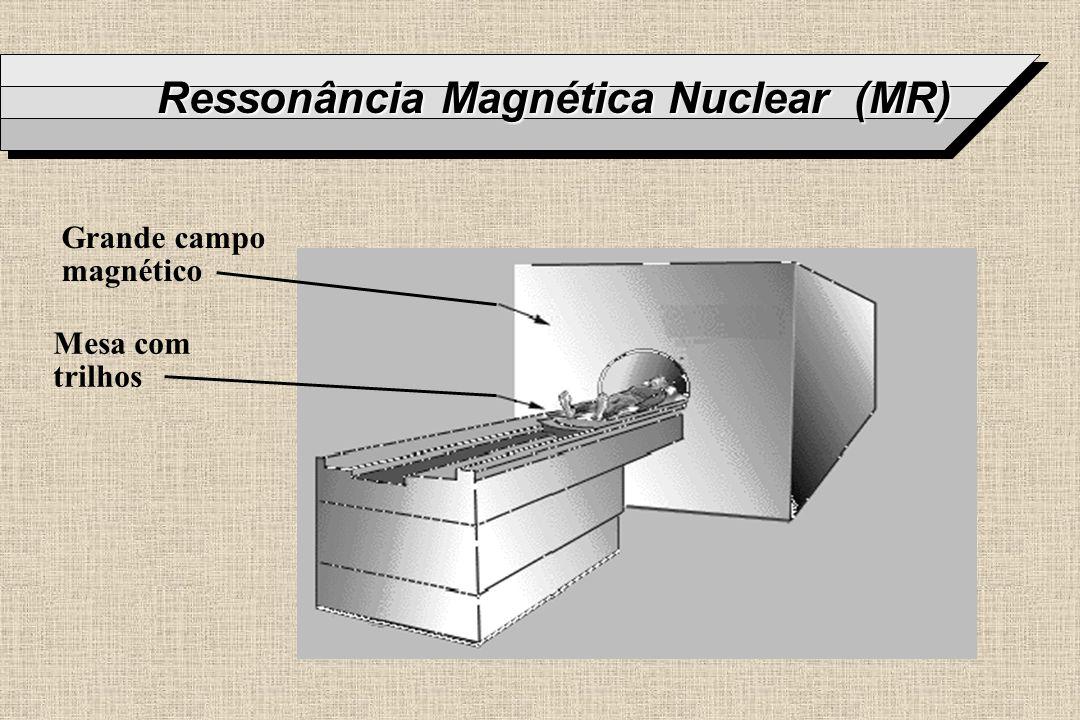 Ressonância Magnética Nuclear (MR) Grande campo magnético Mesa com trilhos