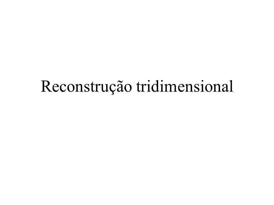 Reconstrução tridimensional