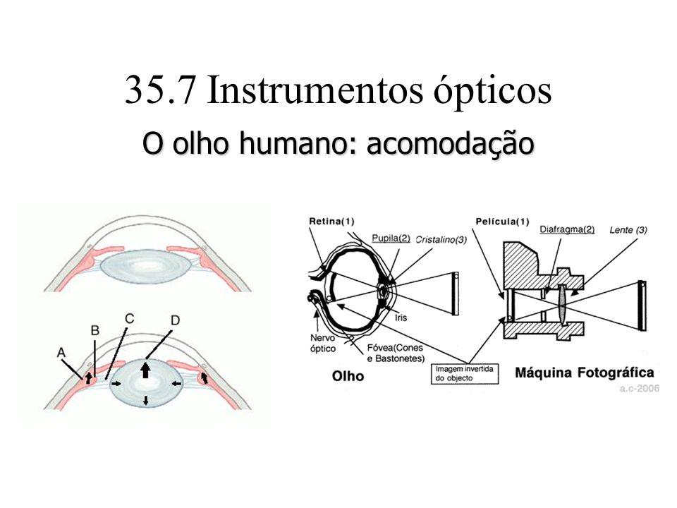 35.7 Instrumentos ópticos O olho humano: acomodação