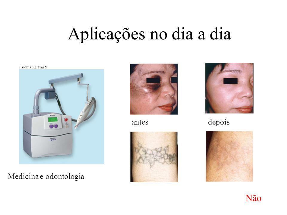 Aplicações no dia a dia Medicina e odontologia antesdepois Palomar Q Yag 5 Não