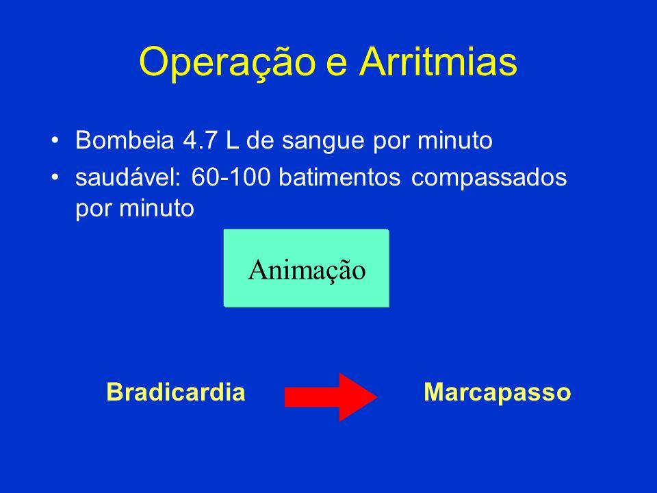 Operação e Arritmias Animação Bombeia 4.7 L de sangue por minuto saudável: 60-100 batimentos compassados por minuto BradicardiaMarcapasso