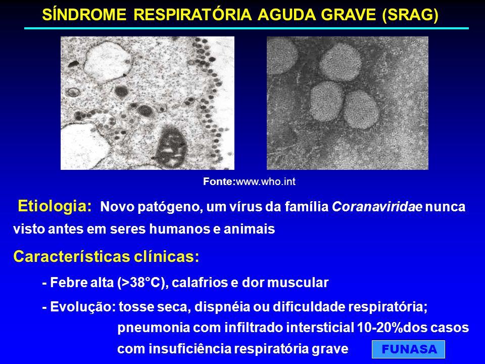 Etiologia: Novo patógeno, um vírus da família Coranaviridae nunca visto antes em seres humanos e animais Características clínicas: - Febre alta (>38°C