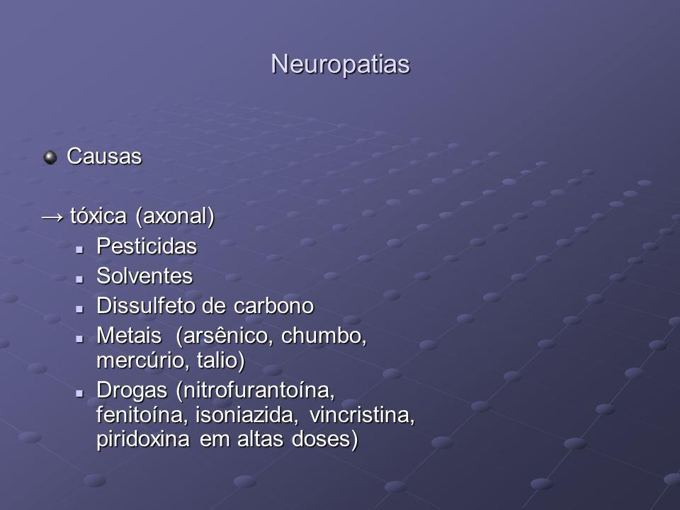 Neuropatias Causas tóxica (axonal) tóxica (axonal) Pesticidas Pesticidas Solventes Solventes Dissulfeto de carbono Dissulfeto de carbono Metais (arsên